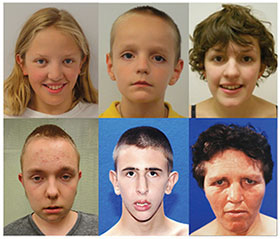 Photo of people with CDH8 mutation, courtesy of journal Cell